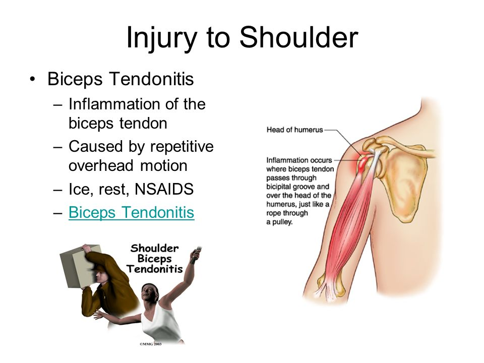 Injuries to the Shoulder. Brief Epidemiology Shoulder pain: a common ...