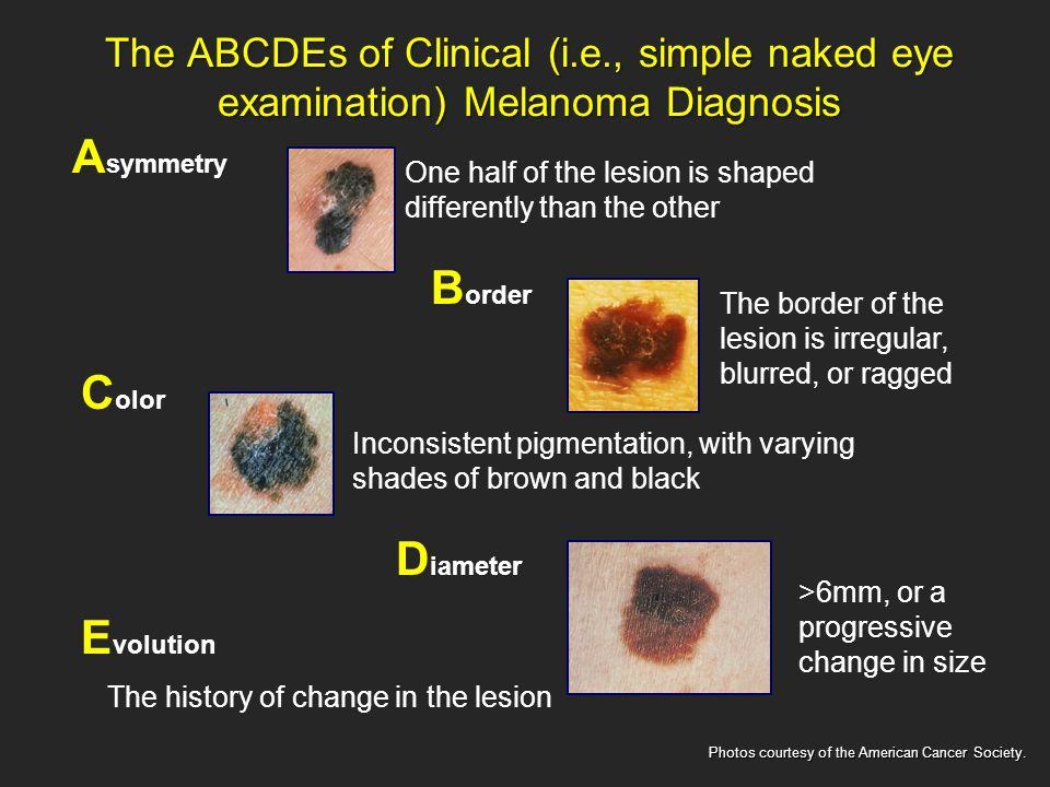What is melanoma melanoma is the deadliest form of skin cancer 5 the toneelgroepblik Choice Image