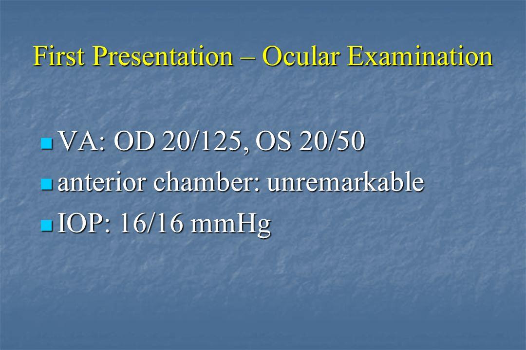 Behçet´s Disease Christoph Deuter Centre for Ophthalmology
