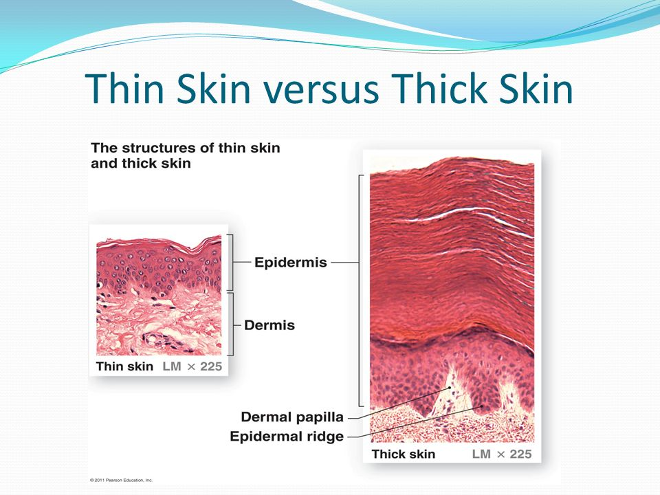 Chapter 5. Introduction to Skin Most accessible but often least ...