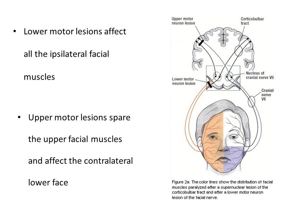 Upper Motor Neuron Lesion Def | motorwallpapers.org