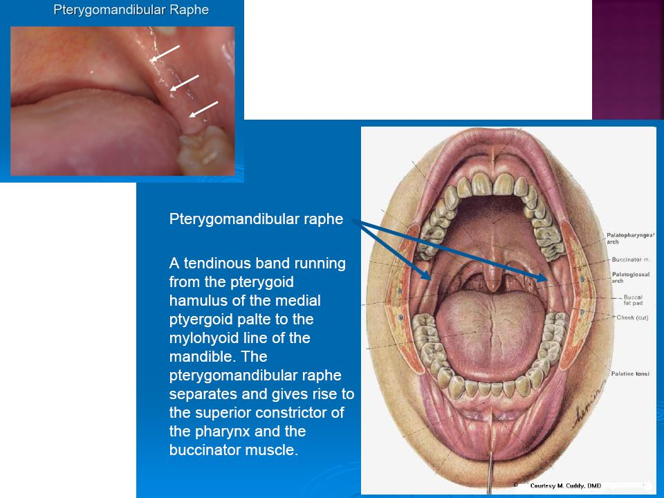 Muscles of facial expression.  Muscles of mastication.  Muscles of soft  palate.  Muscles of tongue. - ppt download