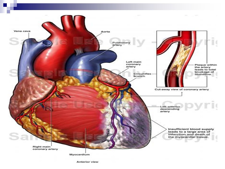 Myocardial Infarction Pathophysiology Risk Factors Ppt Download