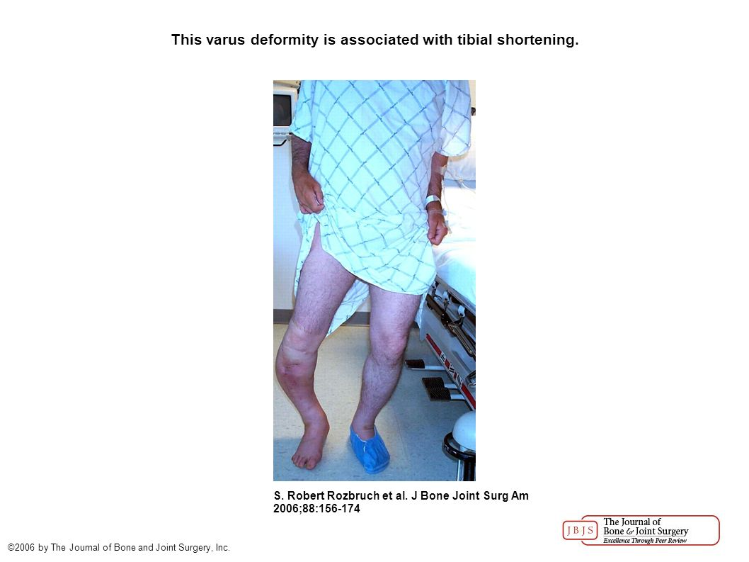 Correction of Tibial Deformity with Use of the Ilizarov- Taylor ...