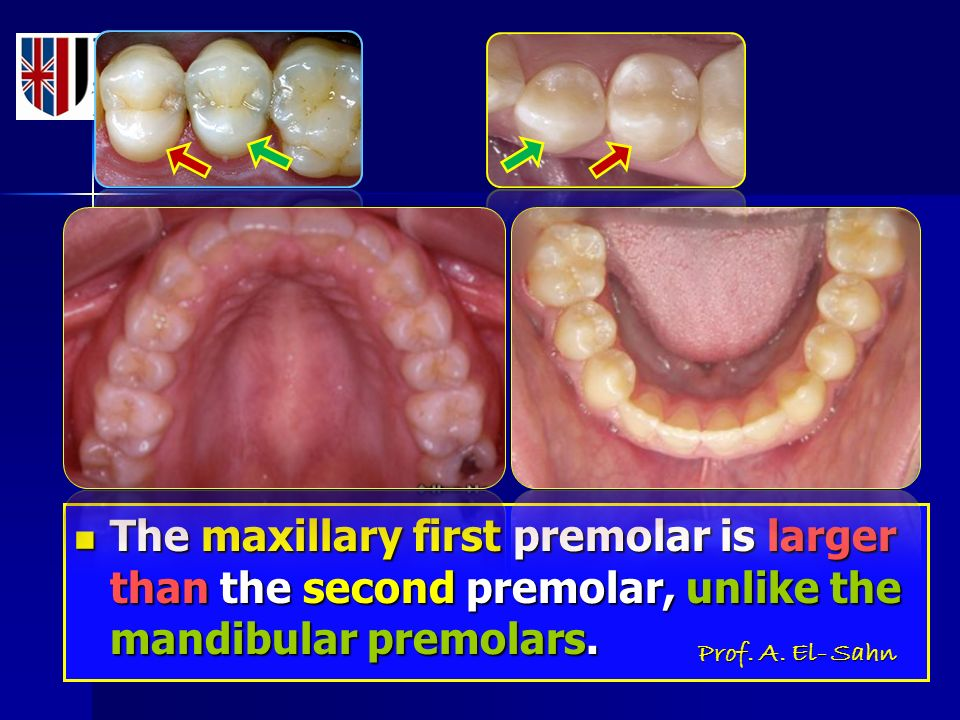 the maxillary first and second premolars are more alike than the mandibular premolars