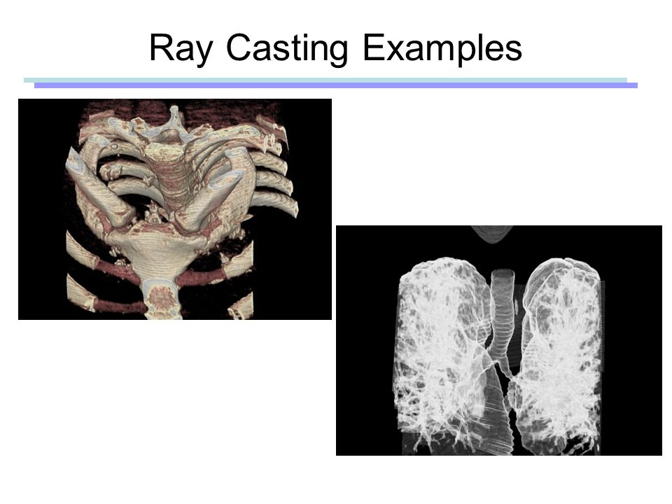Ray Casting Examples