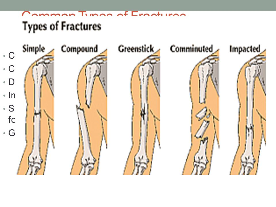 Bone Growth Remodeling Ch 5 Skeletal System Formation Of The