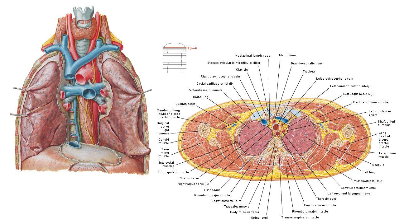 13. Left subclavian.A 14. Left common carotid.A 27. brachiocephalic ...
