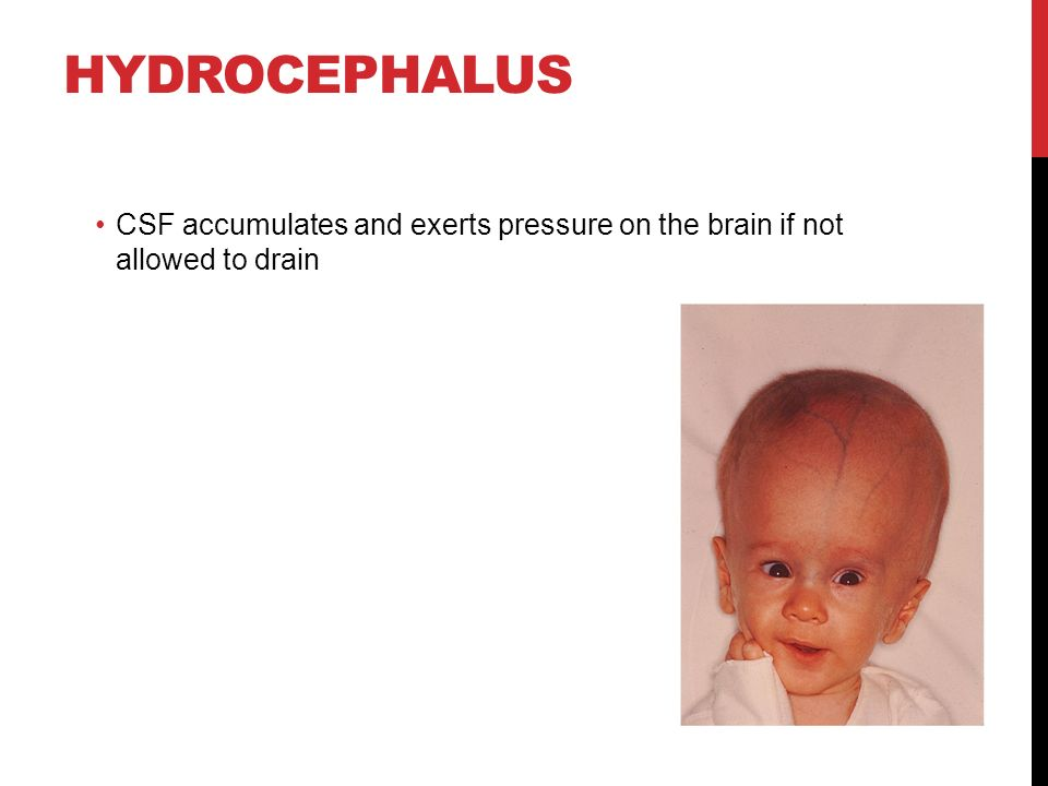 HYDROCEPHALUS CSF accumulates and exerts pressure on the brain if not allowed to drain