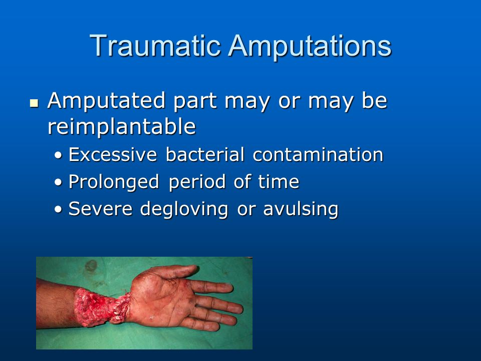 Orthopedic And Wound Management Specific Soft Tissue Emergencies Contusions Hematoma Contusions Hematoma Contusion Contusion Closed Wound In Which A Ppt Download