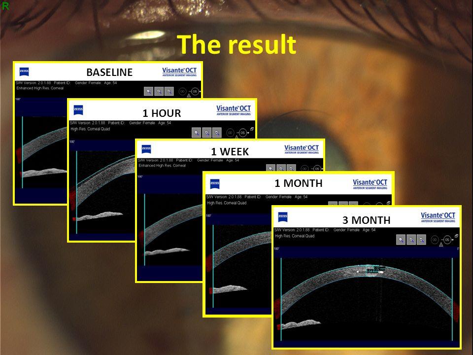 presbia: a new solution for presbyopia correction dr m. fantozzi (1