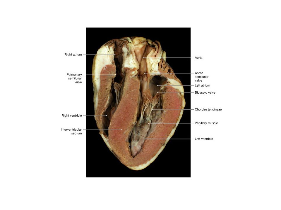 how to dissect a cow heart