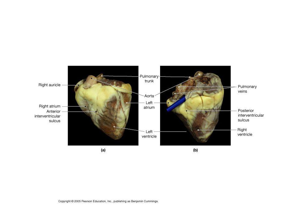 Lab 30 Heart Anatomy Cardiac Muscle Slide Look At The Slide Sketch
