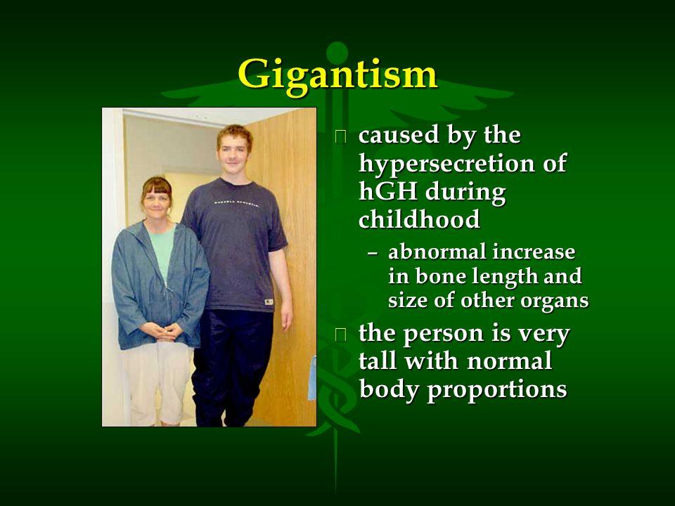 hyposecretion of gh