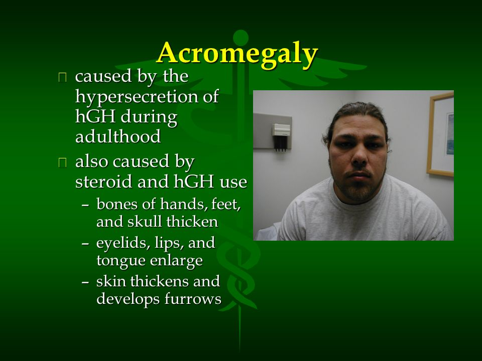 Diseases and Disorders of the Endocrine System Acromegaly l caused