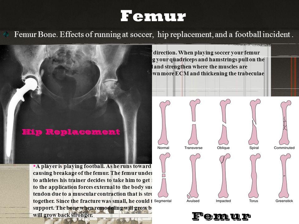 Breakage Trauma Bone Remodeling Bones Femur Humerus Vertebrae