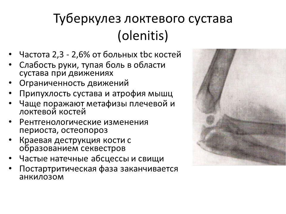 Туберкулез коленного сустава мультирезистентный рис для очистки суставов