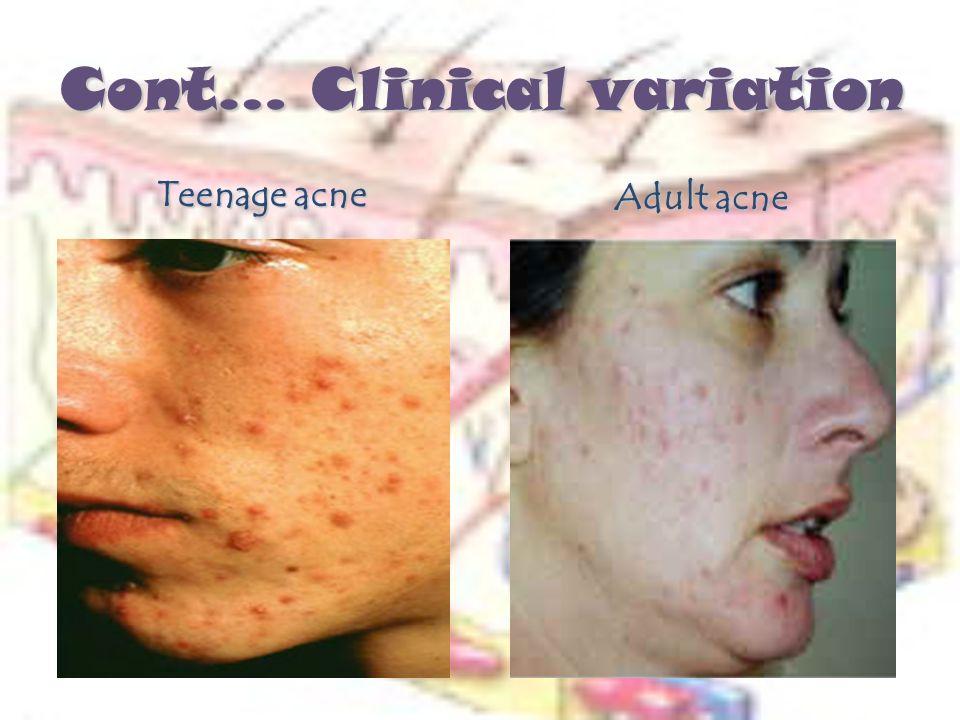acne-adult-forum-anus