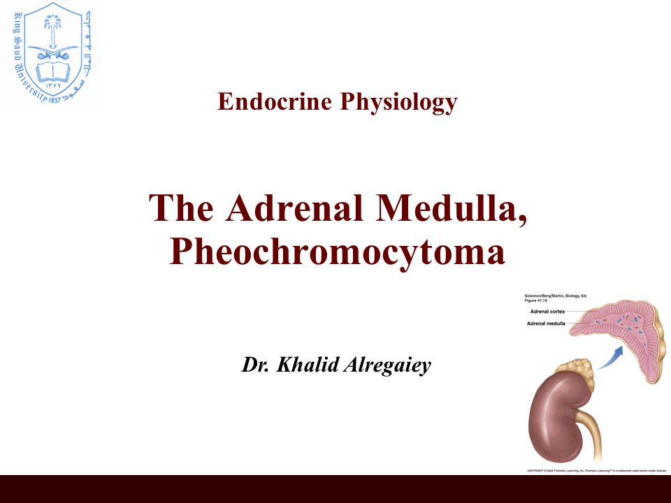 pheochromocytoma essay Pheochromocytoma cancer essays: over 180,000 pheochromocytoma cancer essays, pheochromocytoma cancer term papers, pheochromocytoma cancer research paper, book reports 184 990 essays, term and research papers available for unlimited access.