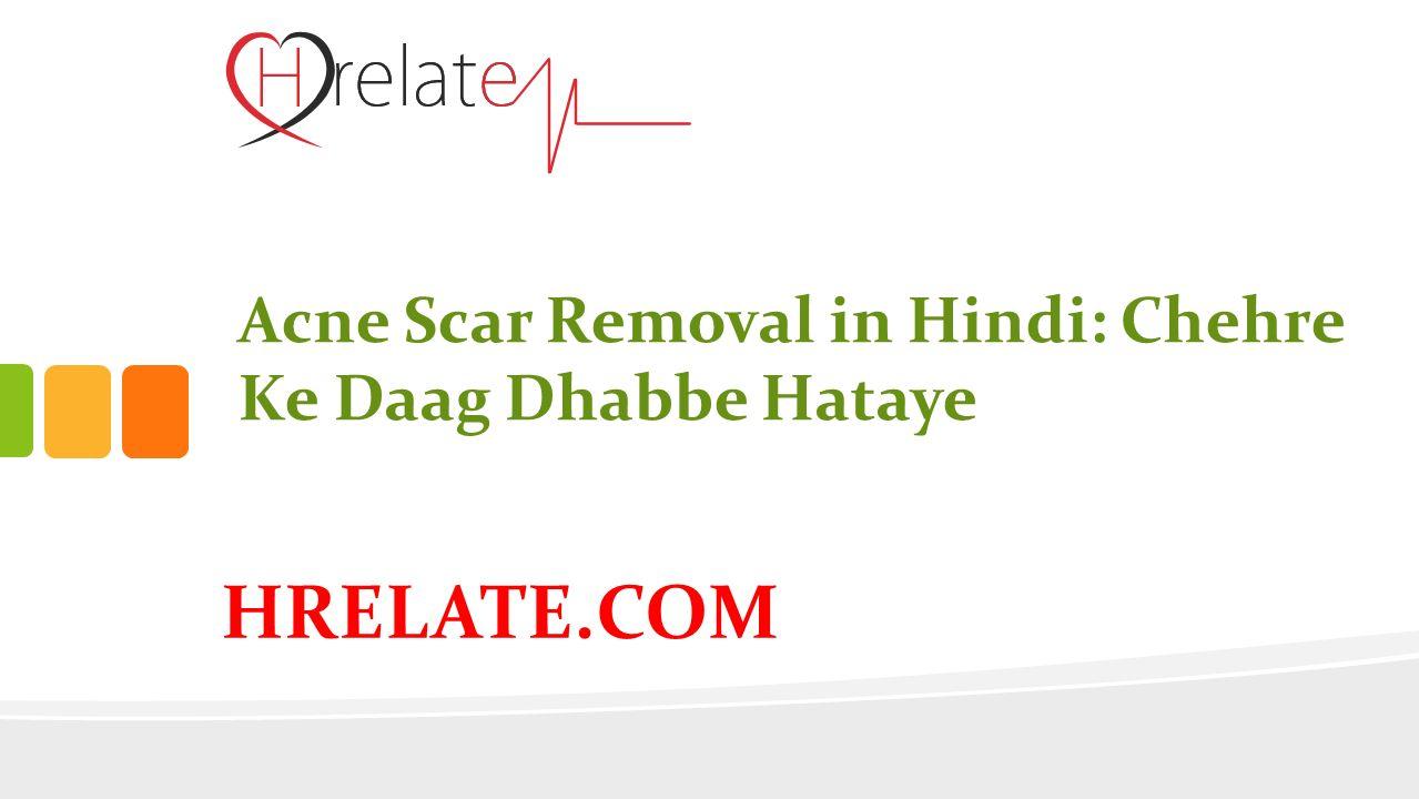 HRELATE COM Acne Scar Removal in Hindi: Chehre Ke Daag