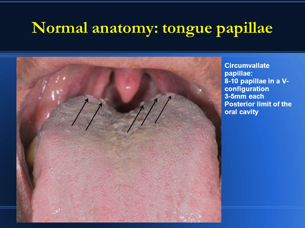 Suspicious Oral Lesions Red White And Other Nitin Pagedar Md