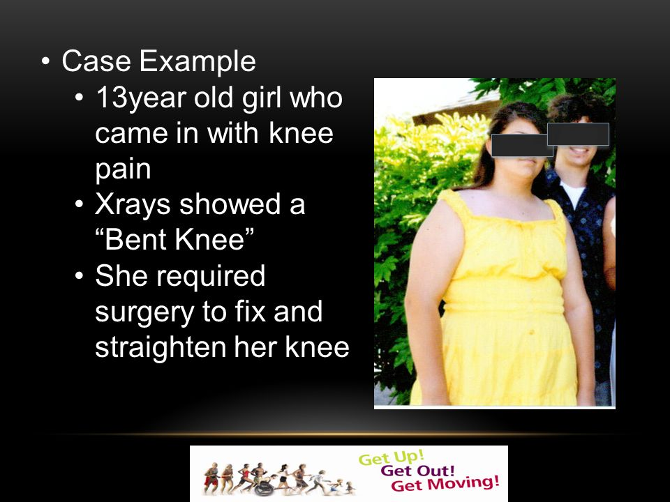 Case Example 13year old girl who came in with knee pain Xrays showed a Bent Knee She required surgery to fix and straighten her knee
