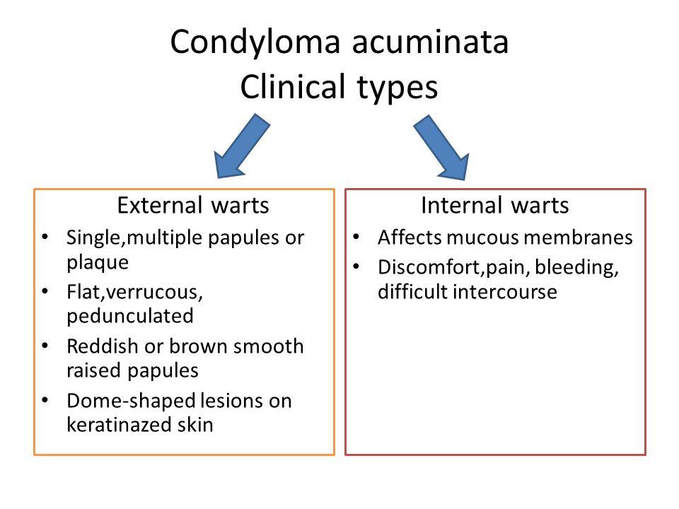 condyloma acuminata how to treat)