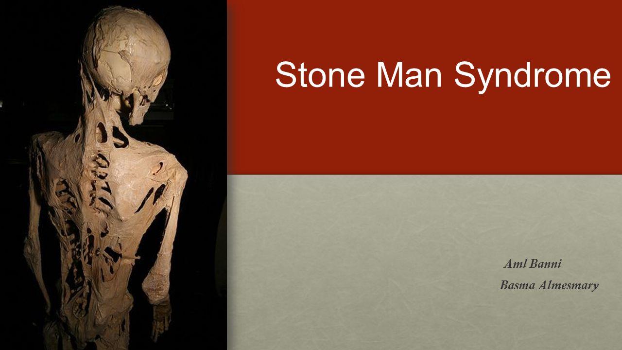 Stone Man Syndrome Aml Banni Basma Almesmary  Introduction