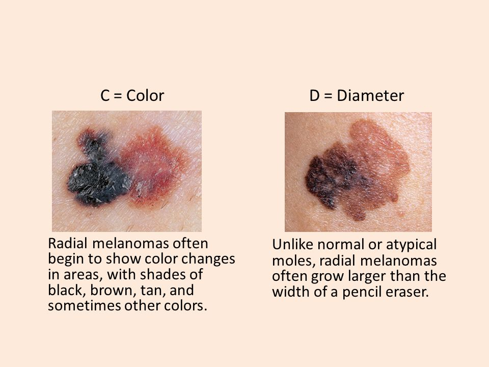 Skin Cancer 9 th Grade  What Do You Know About Skin Cancer? 1) By