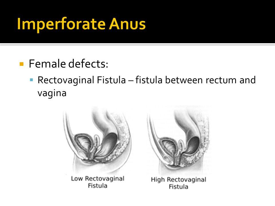 Anus fistula and recto-vaginal imperforate Congenital