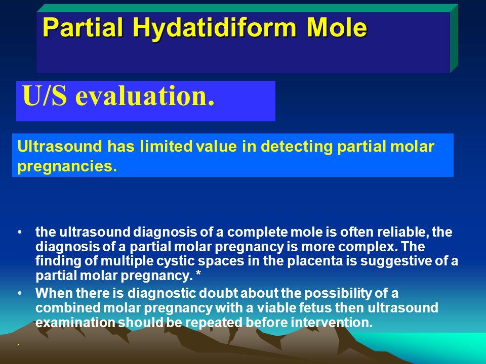 Gestational Trophoblastic DiseasesGTD Dr Bushra M Majeed