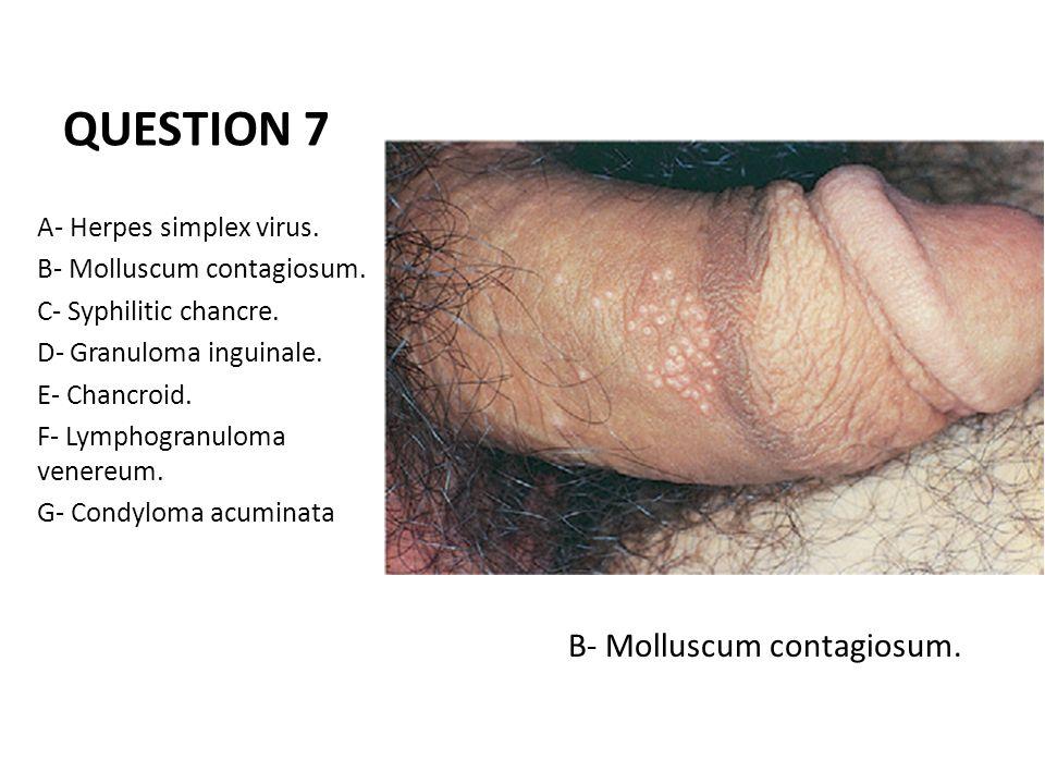 condyloma acuminatum molluscum contagiosum)