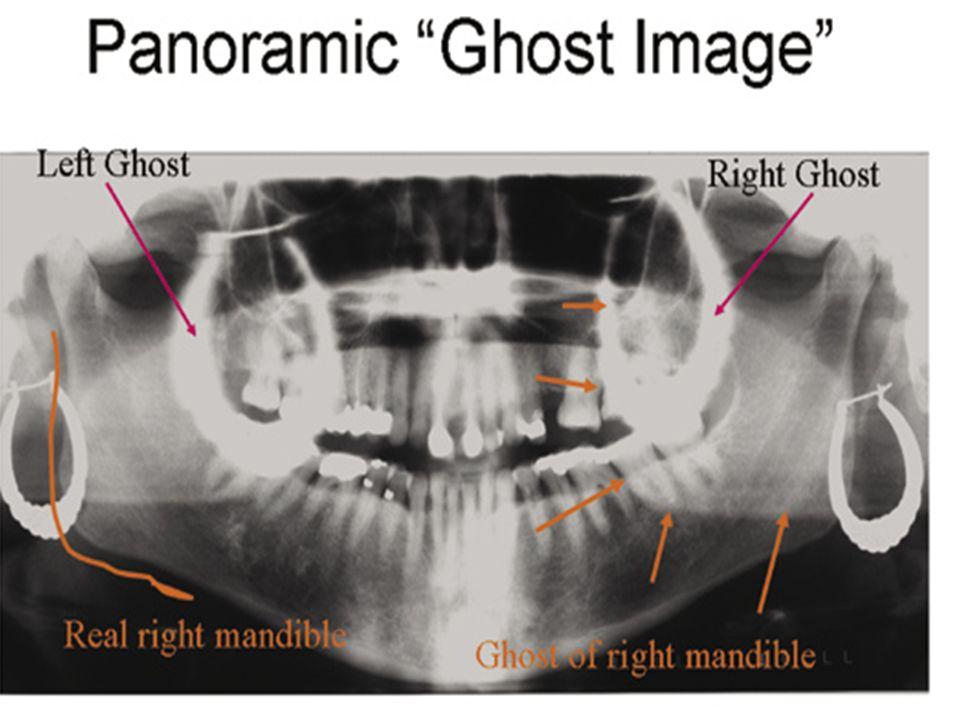 Dorsal Surface Of Tongue Radiograph