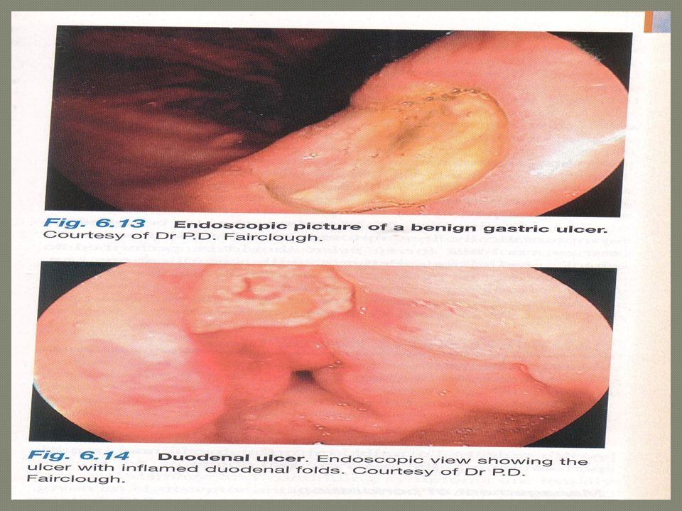 Peptic ulcers are the areas of degeneration and Necrosis of