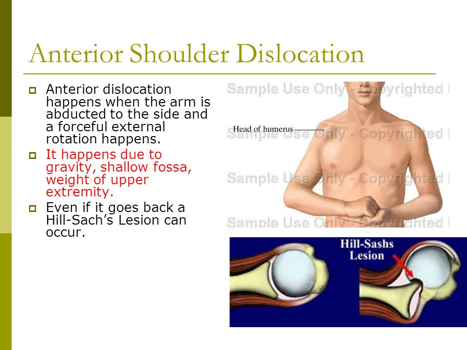 Shoulder Anatomy. Shoulder  It is a ball and socket joint that ...