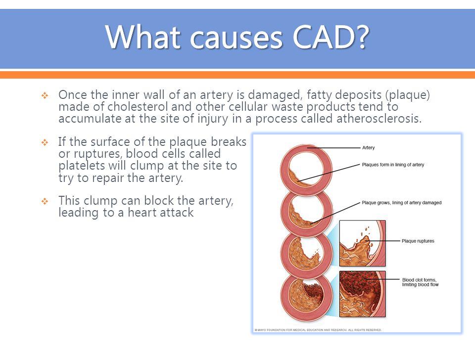 modifiable causes of coronary artery disease