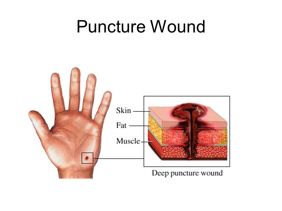 Unit # 3 Basics of Tissue Injury  Soft Tissue Injuries Often