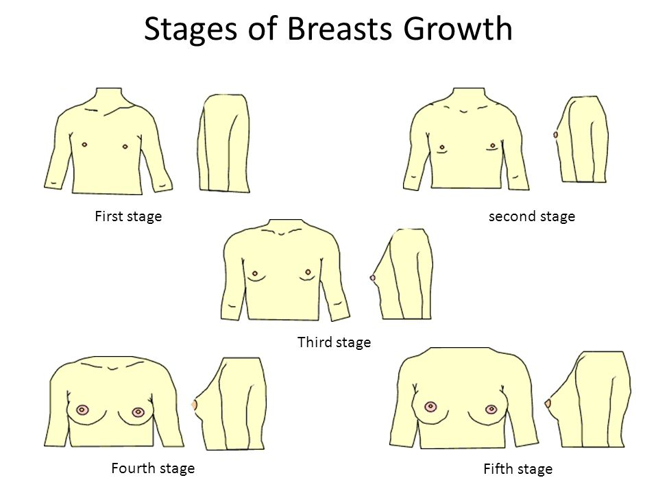Twinges along sides of breasts