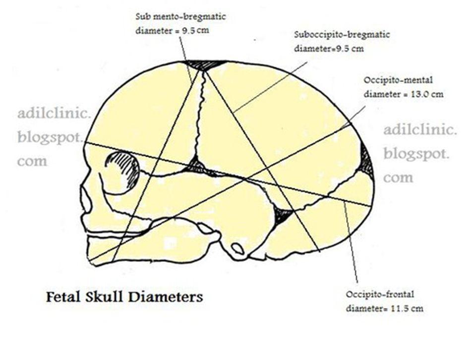 Fetal Skull Diagram - Auto Electrical Wiring Diagram •