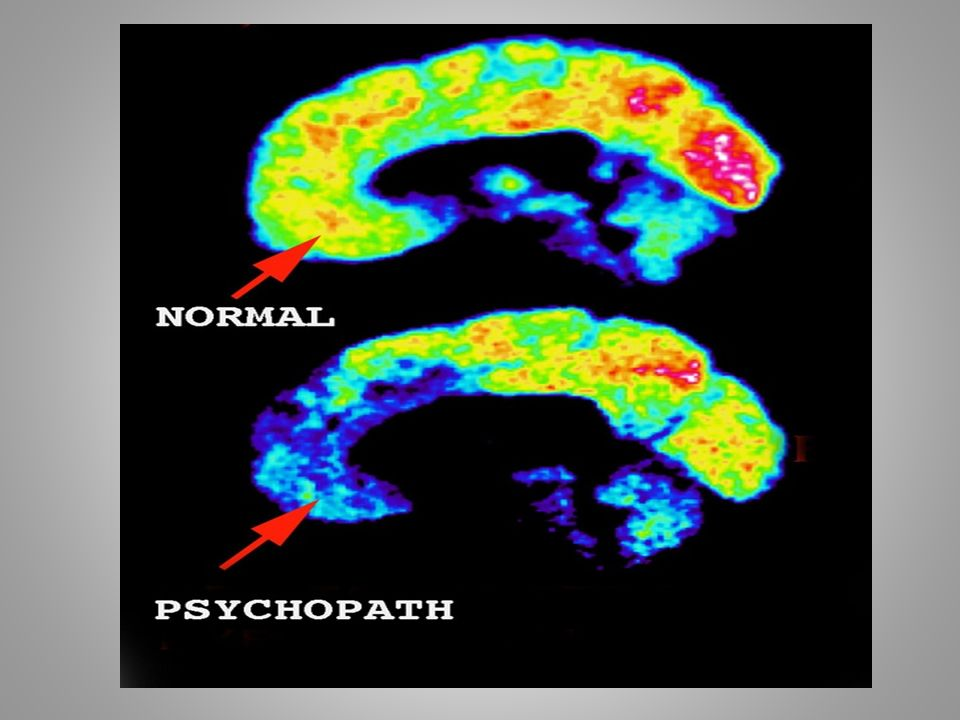 Psychopathic Behavior And Traits An Inside Look What Makes Us Human