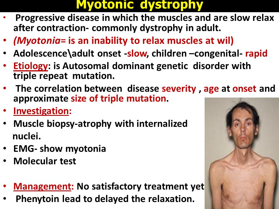 myotonic muscular dystrophy Myotonic muscular dystrophy (mmd) is a form of muscular dystrophy that affects muscles and many other organs in the body unlike some forms of muscular dystrophy.