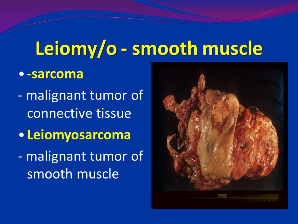 benign cancer of striated muscle