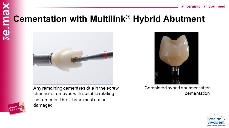 Hybrid Abutment Crown Step By Step Hybrid Abutment Crown Ppt