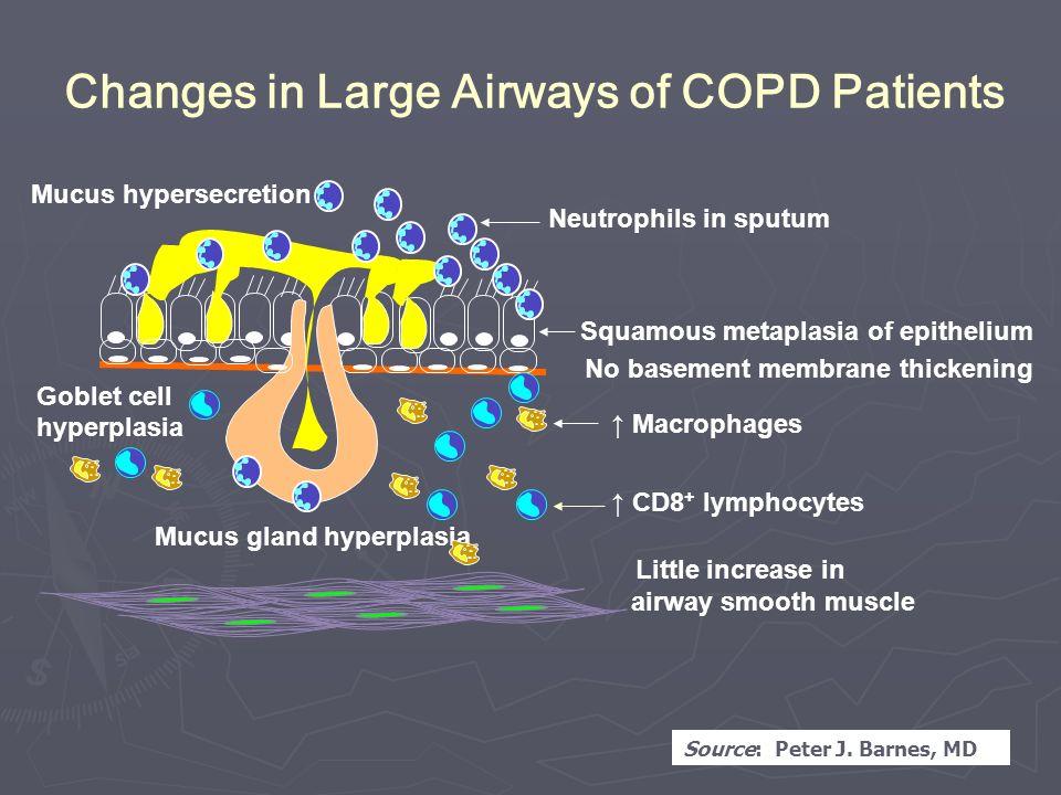 chronic obstructive pulmonary disease barnes peter j