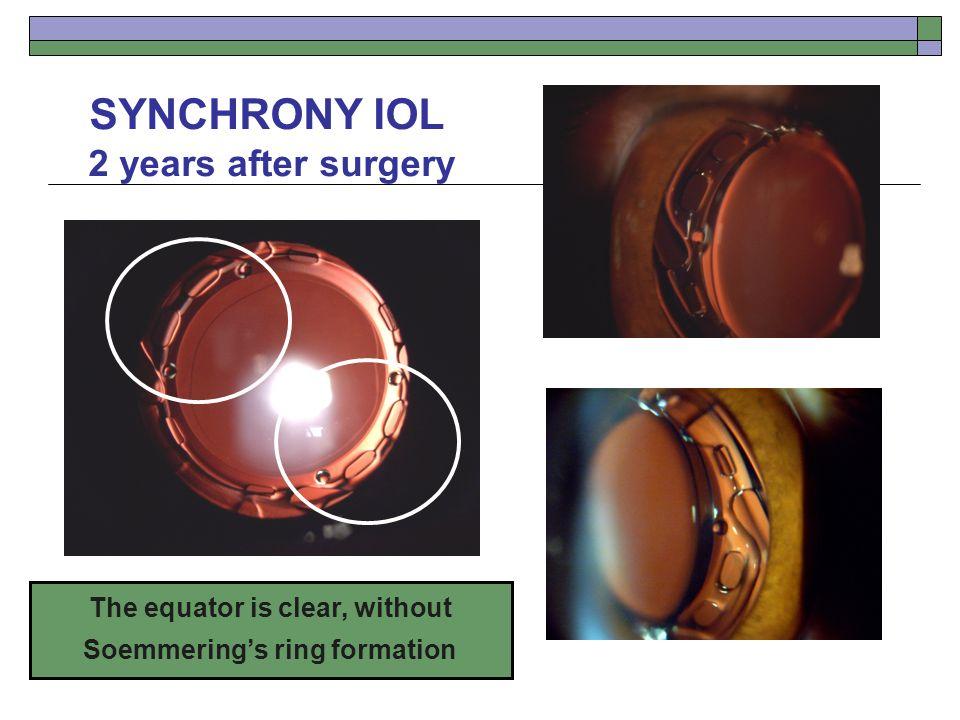 Accommodating iol synchrony financial