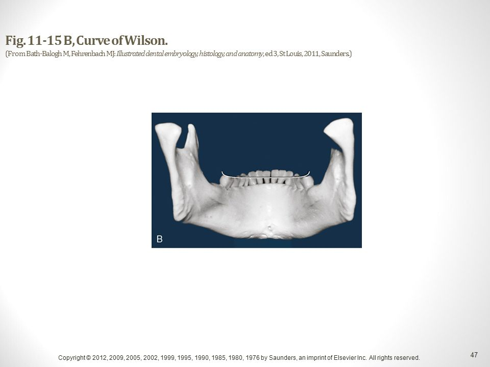 Overview of the Dentitions Copyright © 2012, 2009, 2005, 2002, 1999 ...
