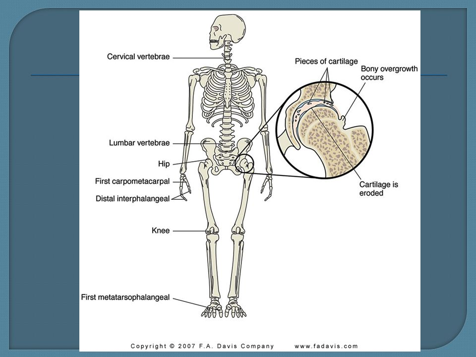 N124IN Spring  Pathophysiology Deterioration of articular
