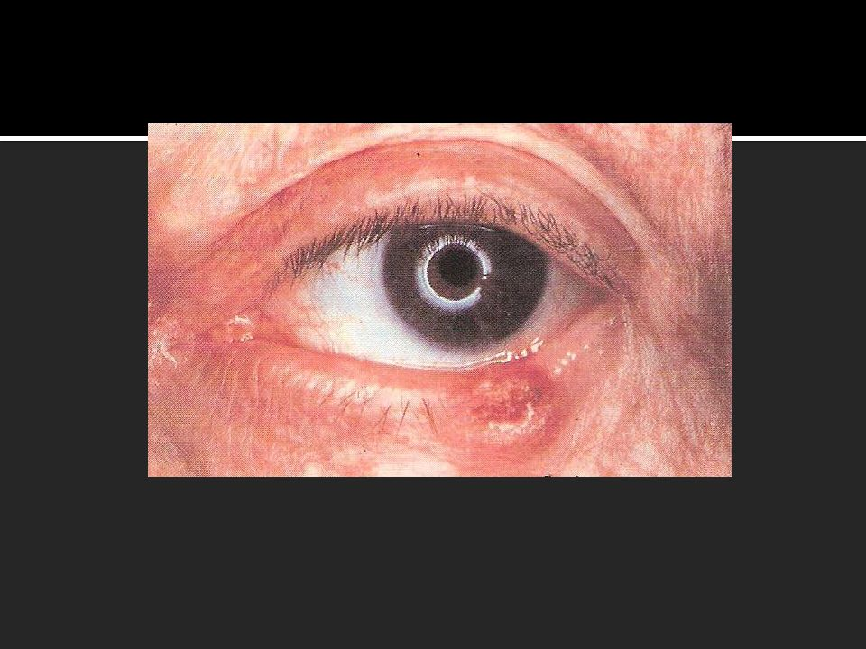 Eyelids Diseases Non Malignant Chalazion Hordeolum Cutaneous Horn