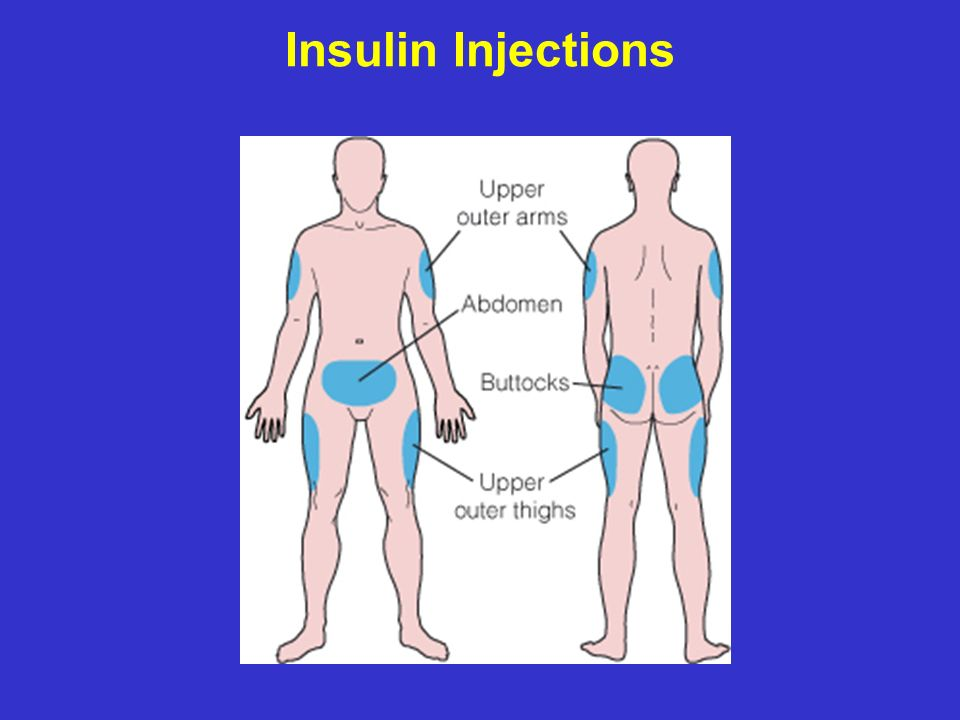 Insulin Injections