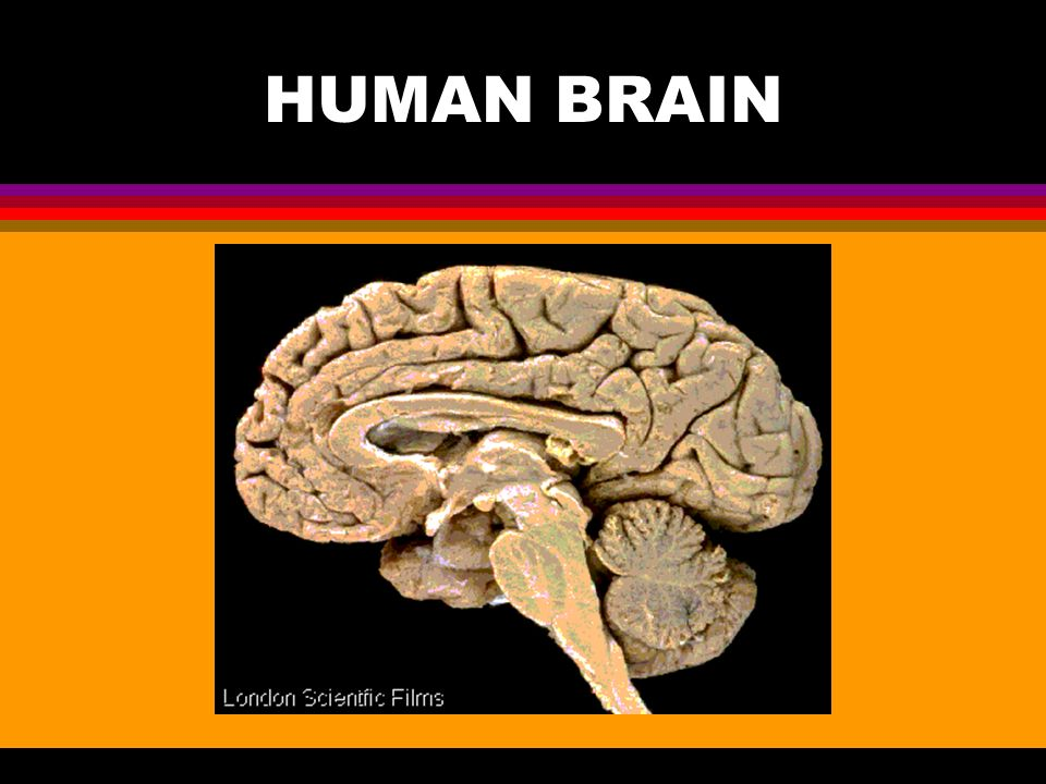 Human Brain L Three Major Structural Components Cerebrum Top